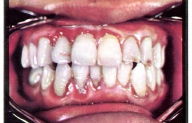 Teen has all 232 of his teeth removed!